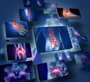 treating musculoskeletal pain order nucynta online