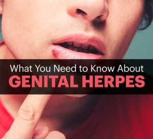 generic valtrex pills for herpes